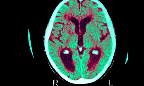 A brain scan of a patient suffering with Alzheimer's disease. The darker areas show a reduction of function and blood flow. Photograph: Alamy