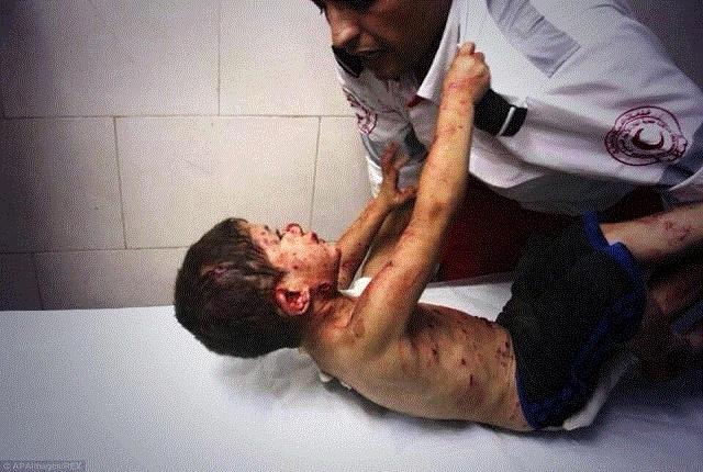 A boy injured in an Israeli strike clings to a medic at al-Shifa hospital (Ezz al-Zanoun/APA images)