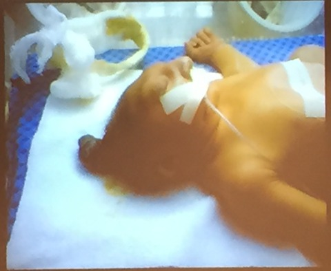 A child hospitalized because of birth defects.