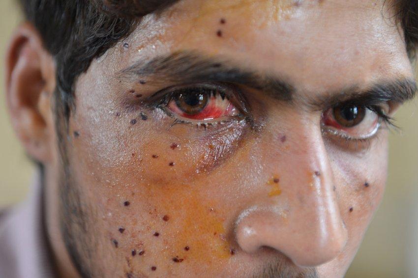 A wounded Kashmiri in Srinagar. AFP