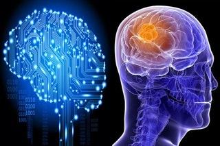 computer-program-beats-doctors-at-spotting-brain-cancer
