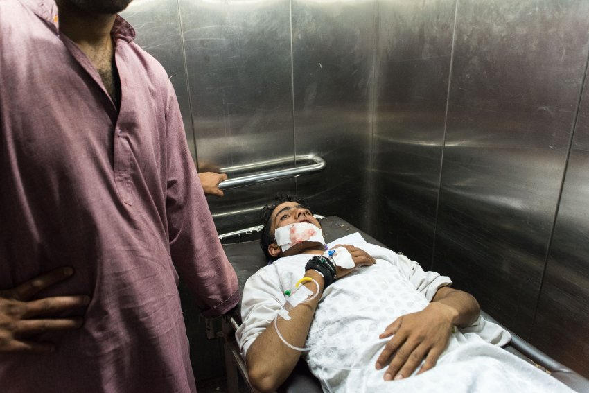An injured teenager at a hospital who was struck by pellets. Camillo Pasquarelli
