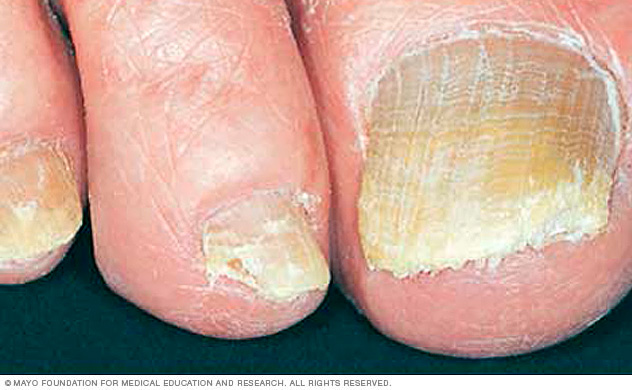 TRANSCEND MEDIA SERVICE » Explainer: Why Do We Get Fungal Nail ...
